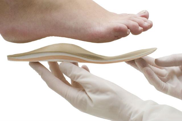 Ортопедические стельки при плоскостопии - как выбрать