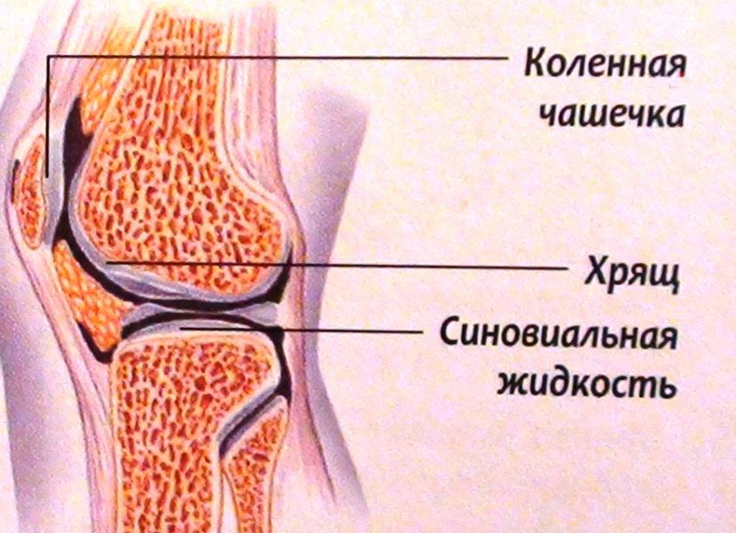 После артроскопии коленного сустава скапливается жидкость