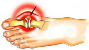 Подагра – это артрит или артроз