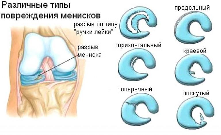 Классификация повреждений коленных менисков