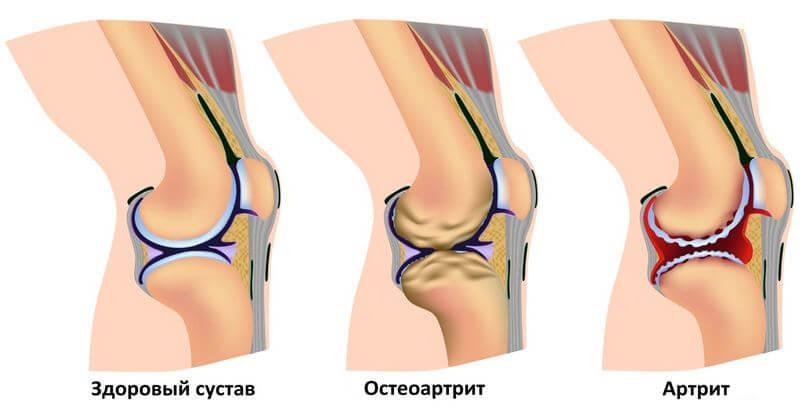 как определить артрит