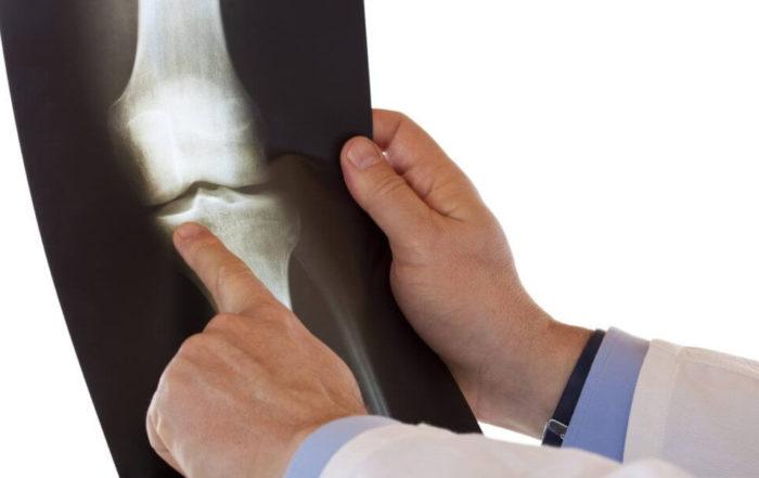 Гонит коленного сустава